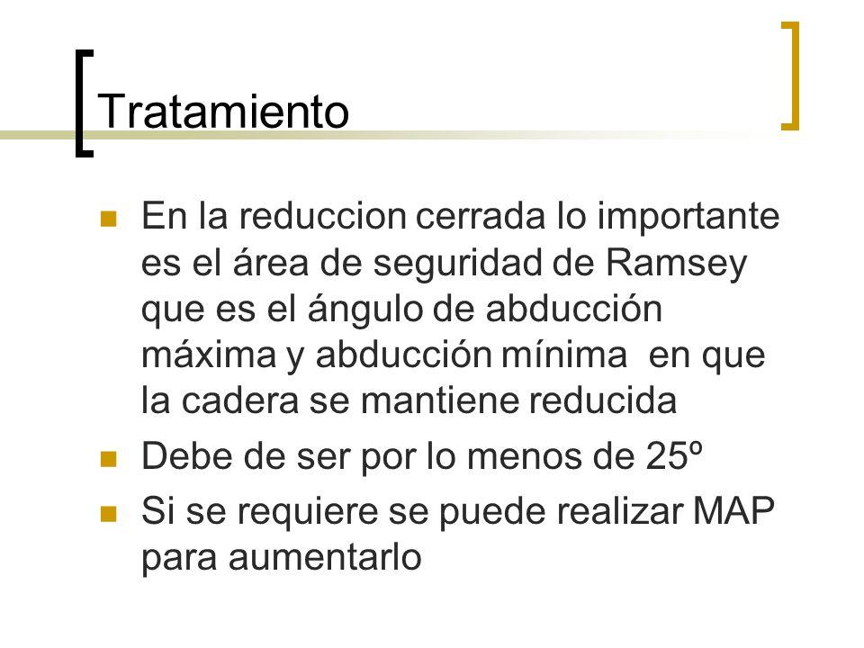 Tratamiento En la reduccion cerrada lo importante es el área de seguridad de Ramsey que es el ángulo de abducción máxima y abducción mínima en que la