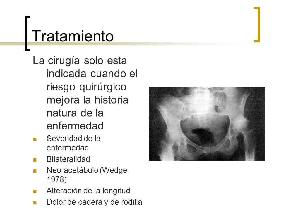 Tratamiento La cirugía solo esta indicada cuando el riesgo quirúrgico mejora la historia natura de la enfermedad Severidad de la enfermedad Bilaterali
