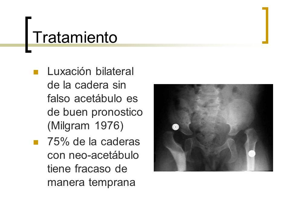 Tratamiento Luxación bilateral de la cadera sin falso acetábulo es de buen pronostico (Milgram 1976) 75% de la caderas con neo-acetábulo tiene fracaso