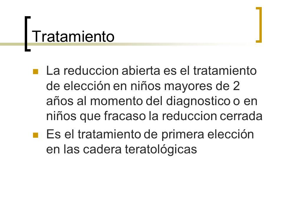 Tratamiento La reduccion abierta es el tratamiento de elección en niños mayores de 2 años al momento del diagnostico o en niños que fracaso la reducci