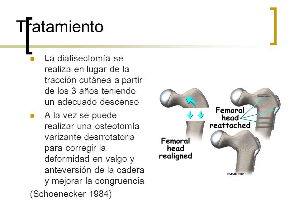 Tratamiento La diafisectomía se realiza en lugar de la tracción cutánea a partir de los 3 años teniendo un adecuado descenso A la vez se puede realiza