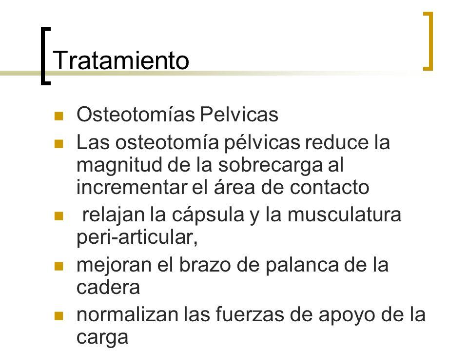 Tratamiento Osteotomías Pelvicas Las osteotomía pélvicas reduce la magnitud de la sobrecarga al incrementar el área de contacto relajan la cápsula y l