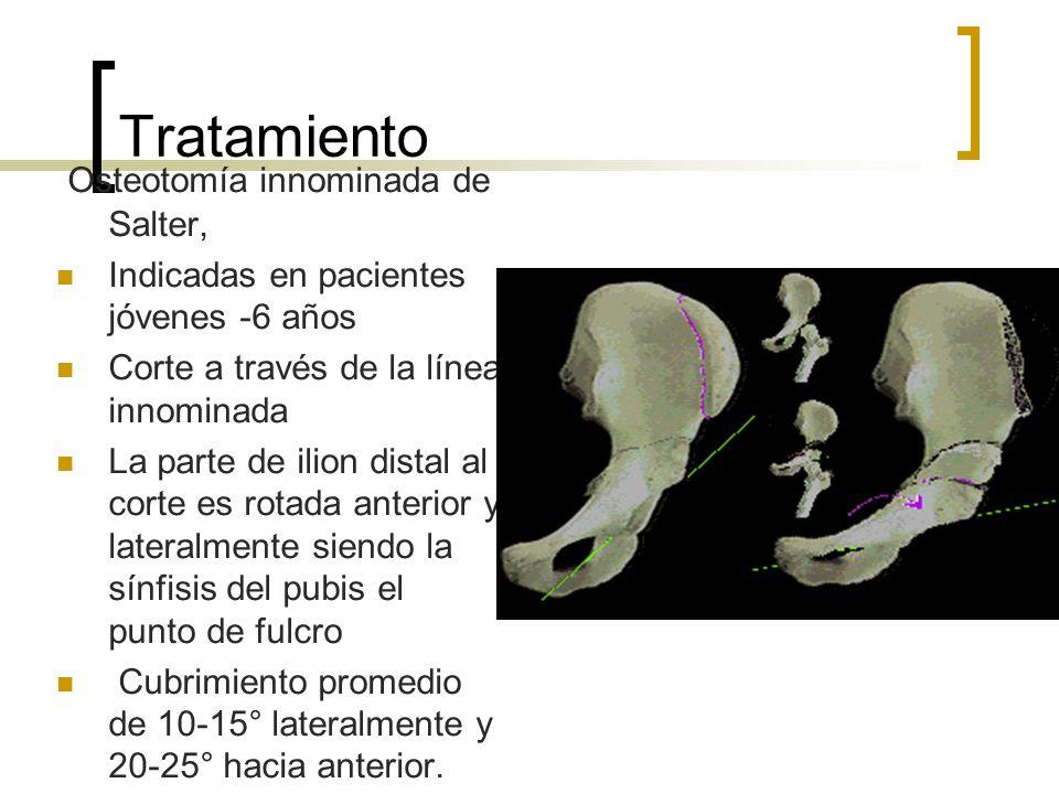Tratamiento Osteotomía innominada de Salter, Indicadas en pacientes jóvenes -6 años Corte a través de la línea innominada La parte de ilion distal al