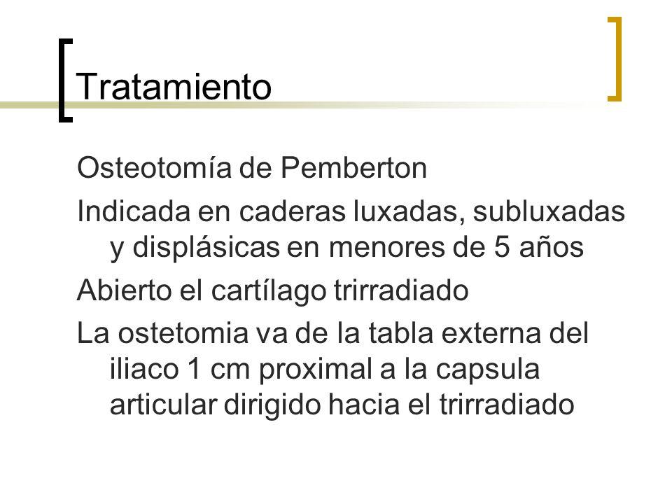 Tratamiento Osteotomía de Pemberton Indicada en caderas luxadas, subluxadas y displásicas en menores de 5 años Abierto el cartílago trirradiado La ost