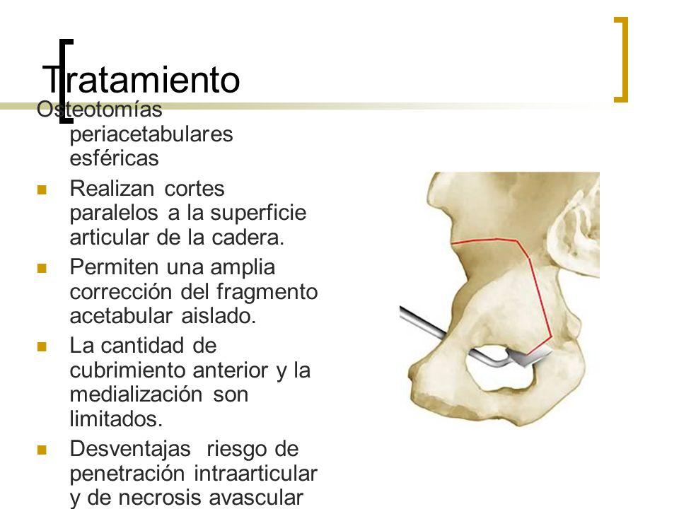 Tratamiento Osteotomías periacetabulares esféricas Realizan cortes paralelos a la superficie articular de la cadera. Permiten una amplia corrección de