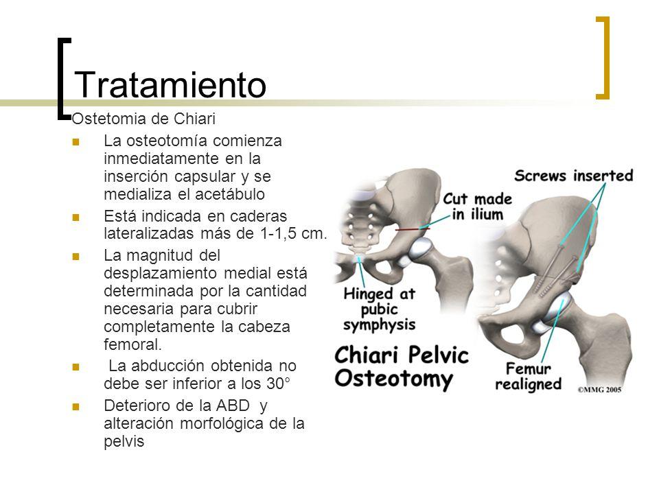 Tratamiento Ostetomia de Chiari La osteotomía comienza inmediatamente en la inserción capsular y se medializa el acetábulo Está indicada en caderas la