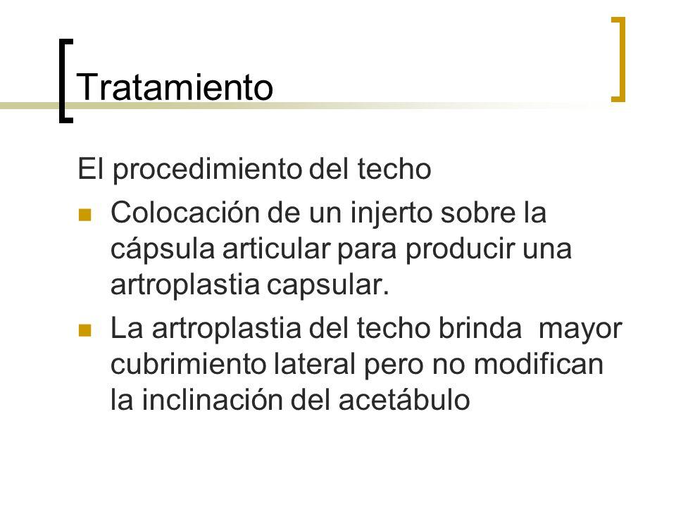 Tratamiento El procedimiento del techo Colocación de un injerto sobre la cápsula articular para producir una artroplastia capsular. La artroplastia de