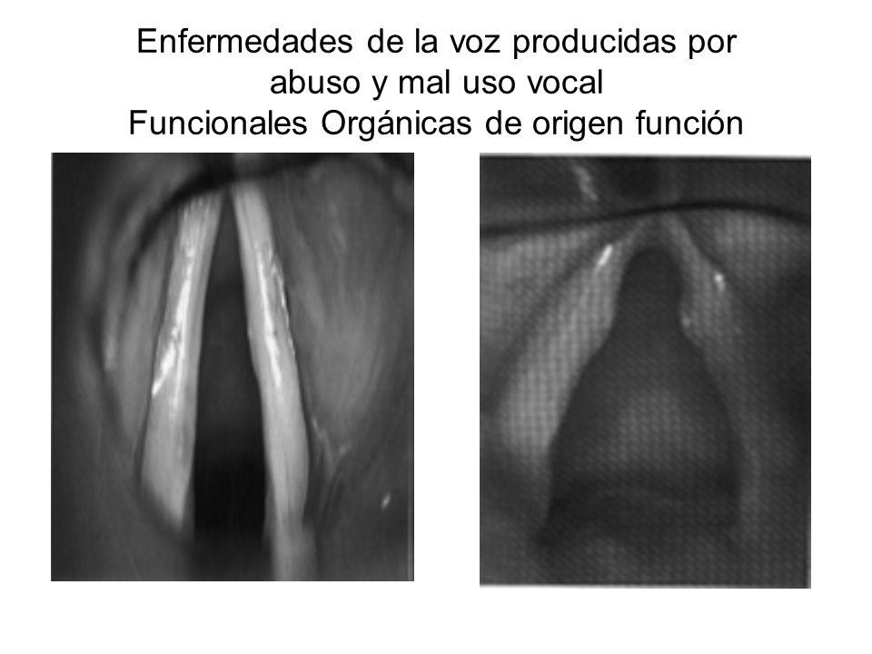 Enfermedades de la voz producidas por abuso y mal uso vocal Funcionales Orgánicas de origen función