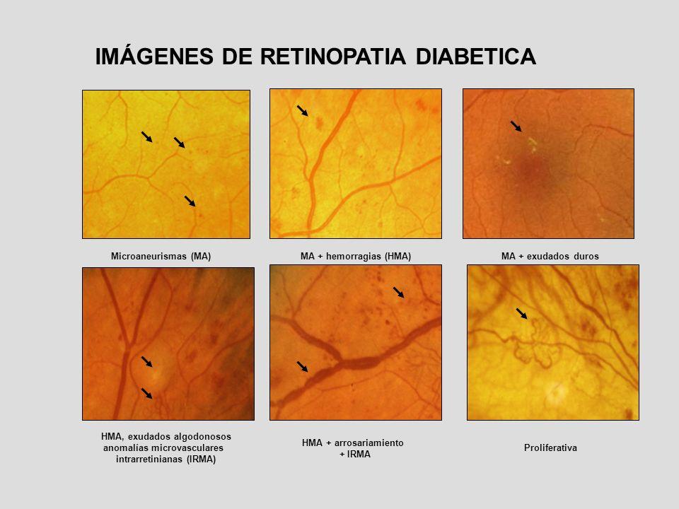 Microaneurismas (MA)MA + hemorragias (HMA)MA + exudados duros HMA, exudados algodonosos anomalías microvasculares intrarretinianas (IRMA) HMA + arrosa