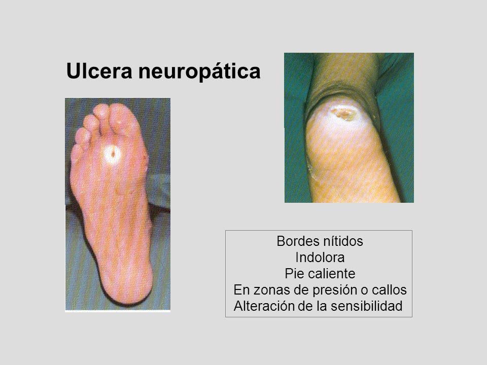 Bordes nítidos Indolora Pie caliente En zonas de presión o callos Alteración de la sensibilidad Ulcera neuropática