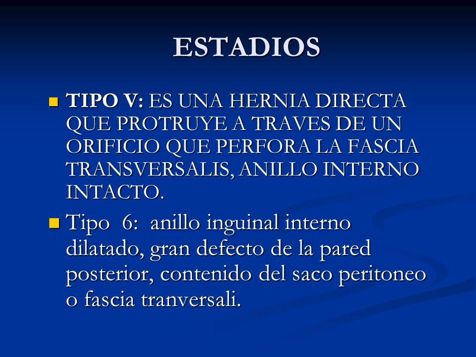 ESTADIOS Tipo 3: anillo inguinal interno muy dilatado, pared posterior normal, la composición del saco es peritoneo. Tipo 3: anillo inguinal interno m