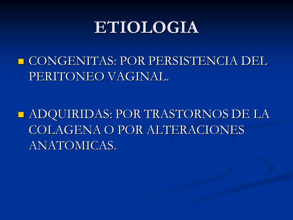 ESTADIOS Tipo 3: anillo inguinal interno muy dilatado, pared posterior normal, la composición del saco es peritoneo.