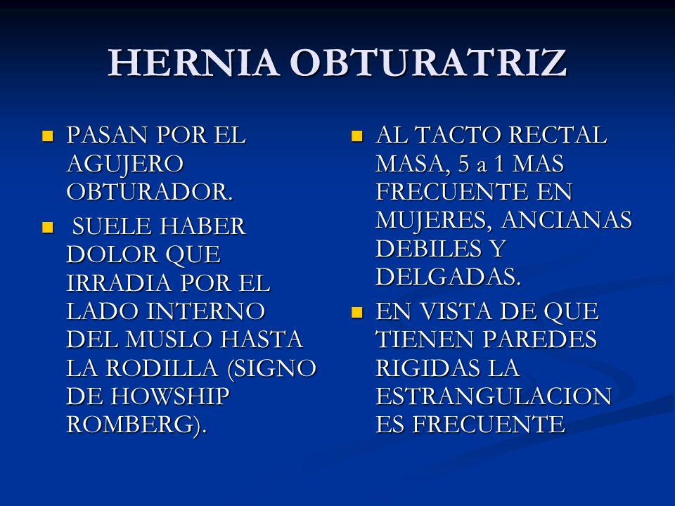 H. DE HESSELBACH O FEMORAL EXTERNA.POR FUERA DE LOS VASOS FEMORALES, POR DEBAJO DEL LIGAMENTO INGUINAL. H. DE HESSELBACH O FEMORAL EXTERNA.POR FUERA D