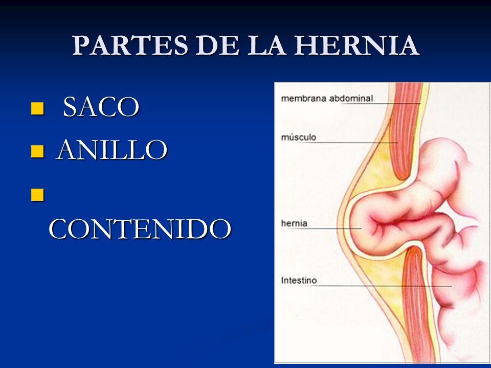 PARTES DE LA HERNIA SACO SACO ANILLO ANILLO CONTENIDO CONTENIDO