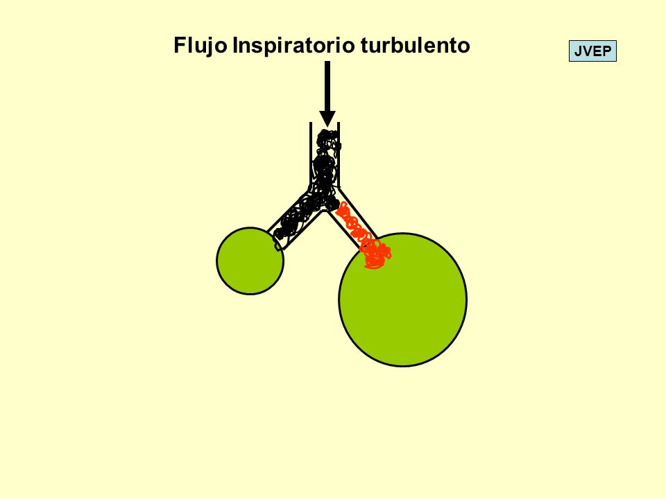 JVEP Flujo Inspiratorio turbulento