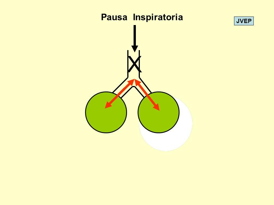 JVEP X Pausa Inspiratoria