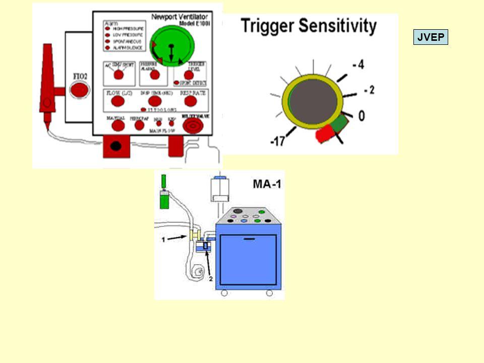 JVEP 0 25 Tiempo Presión Inspiración Control Flujo Inspiratorio El control de flujo inspiratorio regula el Tiempo inspiratorio en los VM ciclados Por presión.