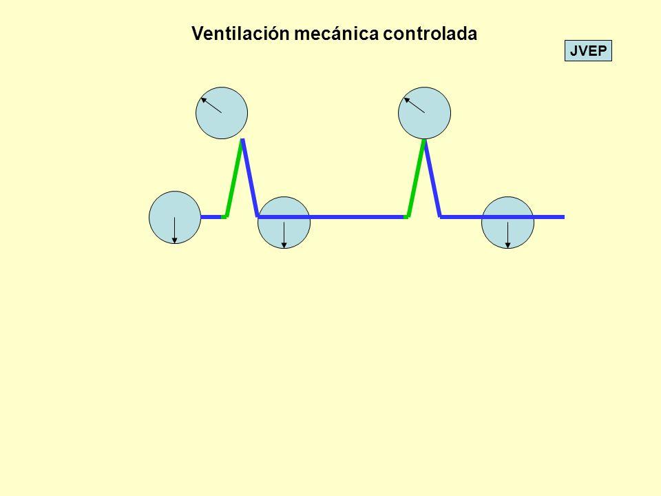 JVEP VC 200 660 400 300 100 0 1234567 TIEMPO SEG 660 FR 12 I = 2 E = 3 Ventiladores ciclados por volumen Volumen fijo y presión variable 12 60 / 12 = 5 FLUJO INSP.