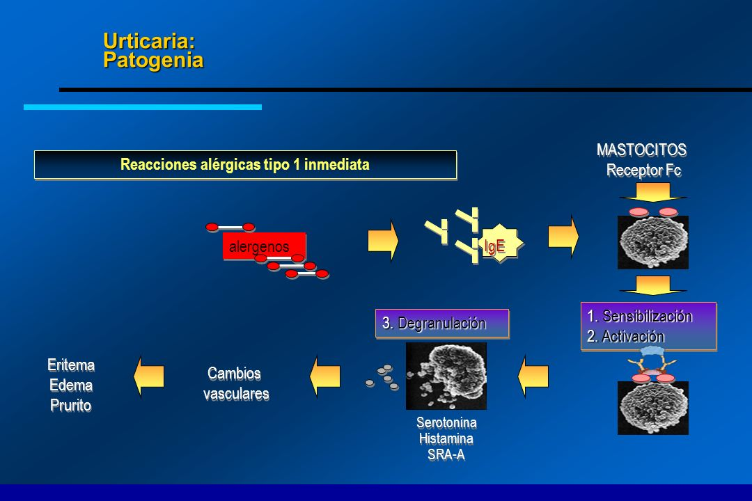 Urticaria: Patogenia Reacciones alérgicas tipo 1 inmediata MASTOCITOS Receptor Fc Serotonina Histamina SRA-A Serotonina Histamina SRA-A 1. Sensibiliza