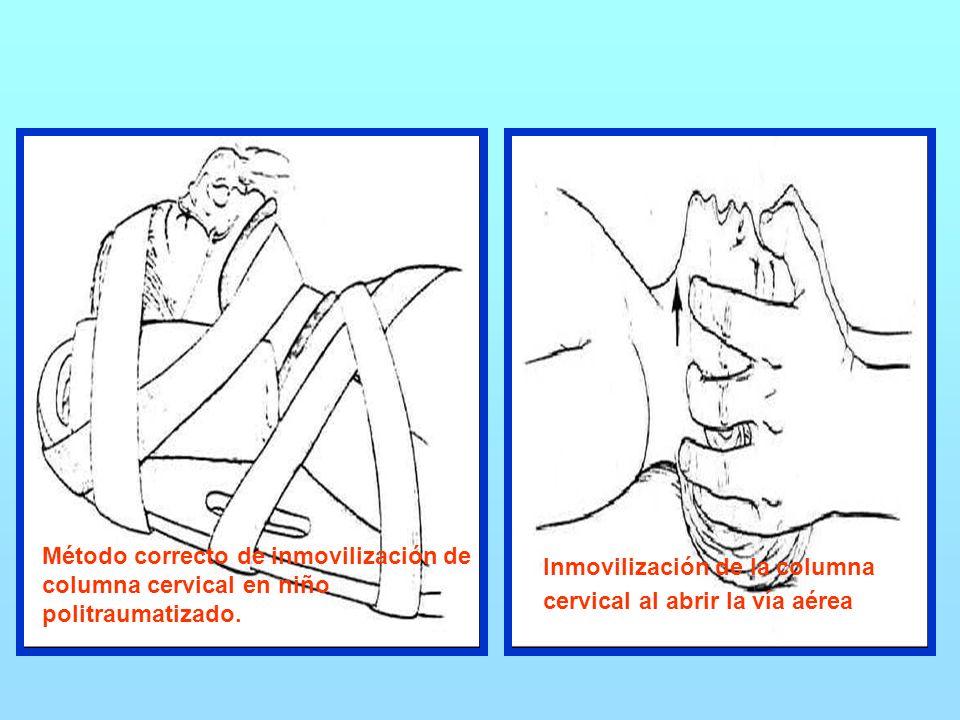 Método correcto de inmovilización de columna cervical en niño politraumatizado.