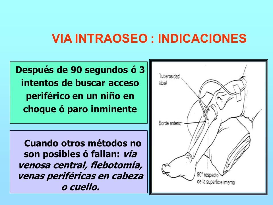 VIA INTRAOSEO : INDICACIONES Después de 90 segundos ó 3 intentos de buscar acceso periférico en un niño en choque ó paro inminente Cuando otros métodos no son posibles ó fallan: vía venosa central, flebotomía, venas periféricas en cabeza o cuello.