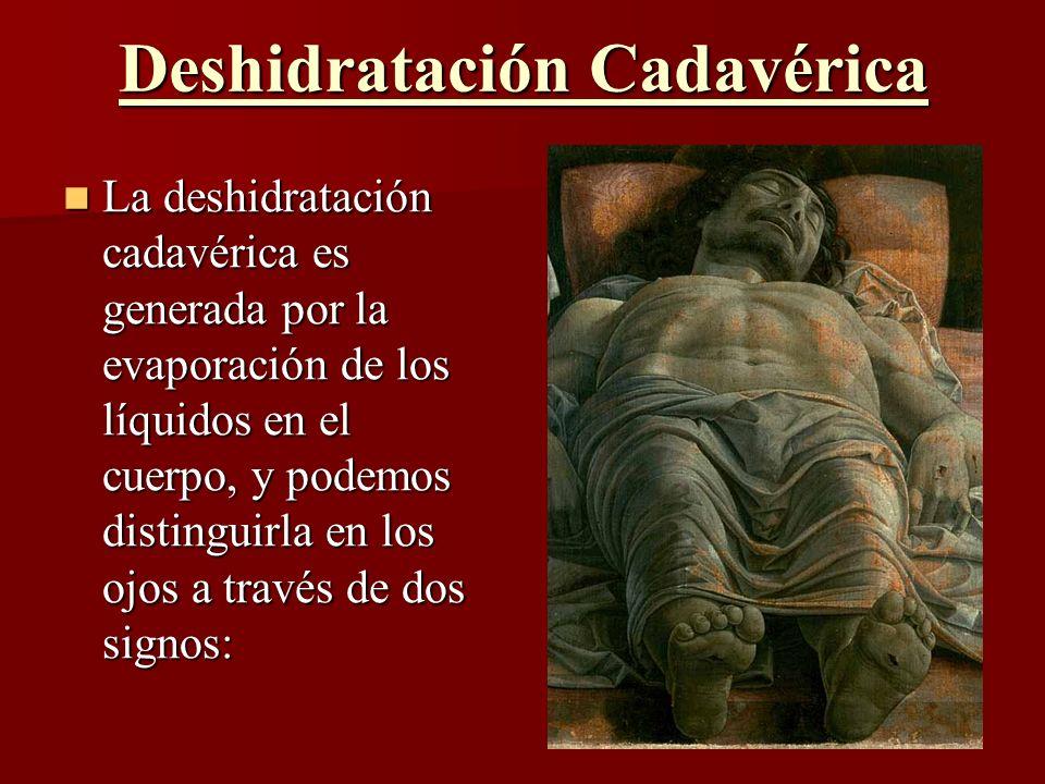 Deshidratación Cadavérica La deshidratación cadavérica es generada por la evaporación de los líquidos en el cuerpo, y podemos distinguirla en los ojos