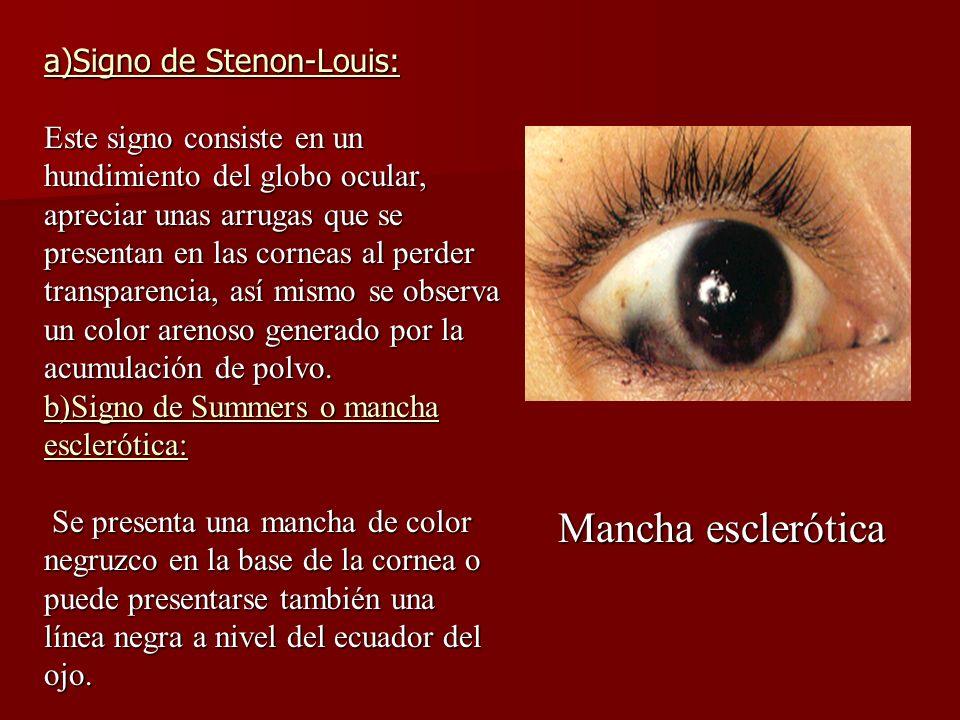 Mancha esclerótica a)Signo de Stenon-Louis: Este signo consiste en un hundimiento del globo ocular, apreciar unas arrugas que se presentan en las corn