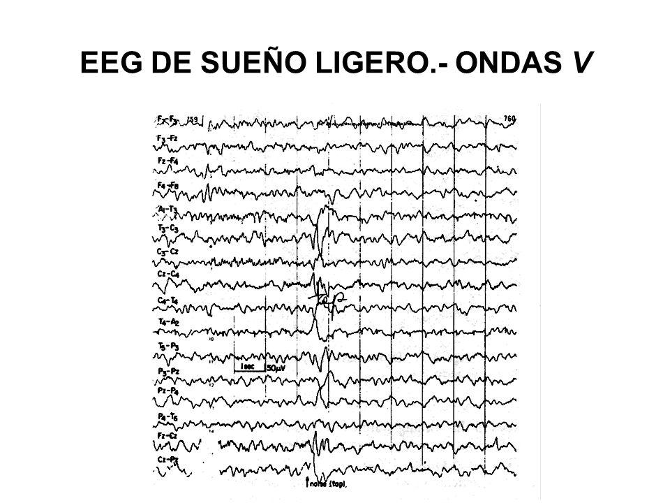 EEG DE SUEÑO LIGERO.- ONDAS V