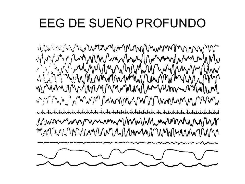 EEG DE SUEÑO PROFUNDO