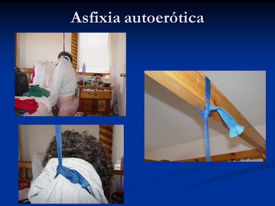 Asfixia autoerótica