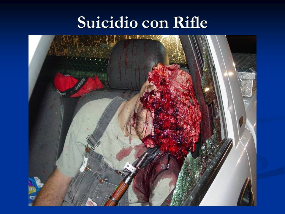 Suicidio con Rifle