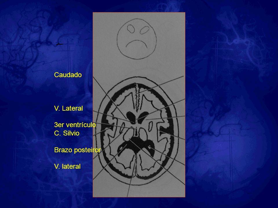 Caudado V. Lateral 3er ventrículo C. Silvio Brazo posteiror V. lateral