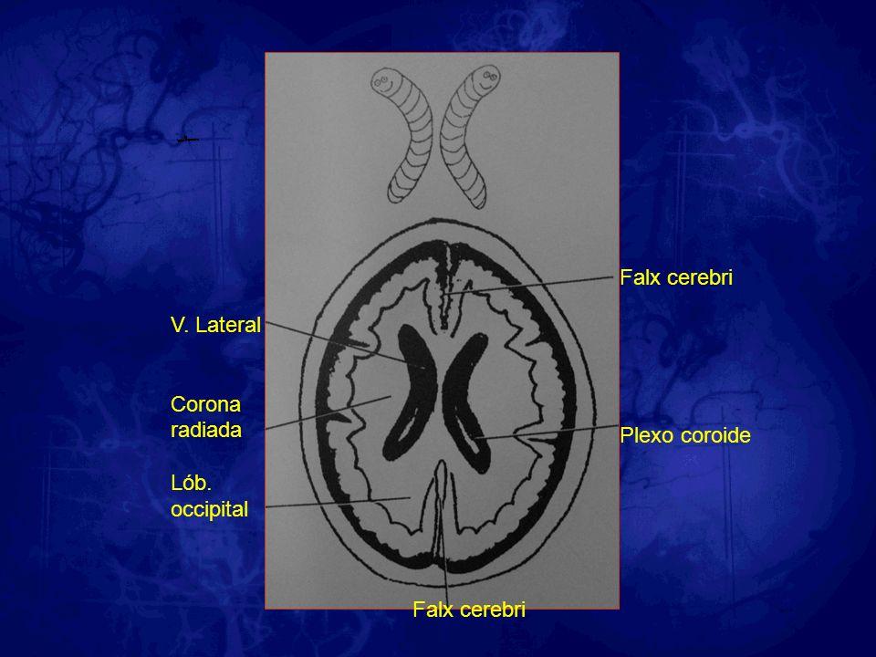 V. Lateral Corona radiada Lób. occipital Falx cerebri Plexo coroide Falx cerebri