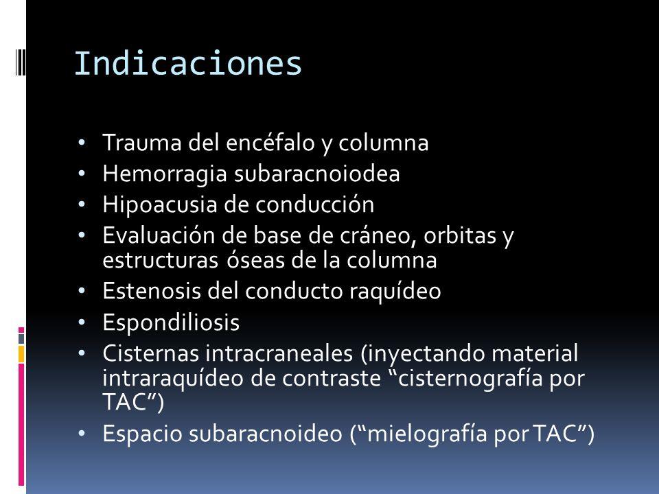 Indicaciones Trauma del encéfalo y columna Hemorragia subaracnoiodea Hipoacusia de conducción Evaluación de base de cráneo, orbitas y estructuras ósea