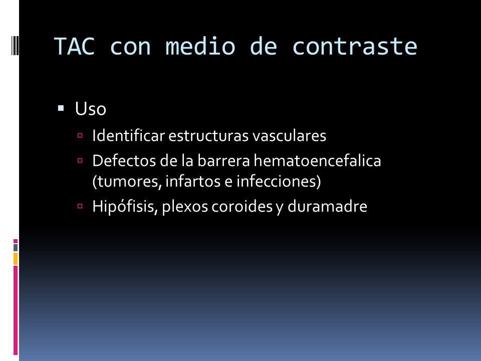 TAC con medio de contraste Uso Identificar estructuras vasculares Defectos de la barrera hematoencefalica (tumores, infartos e infecciones) Hipófisis,