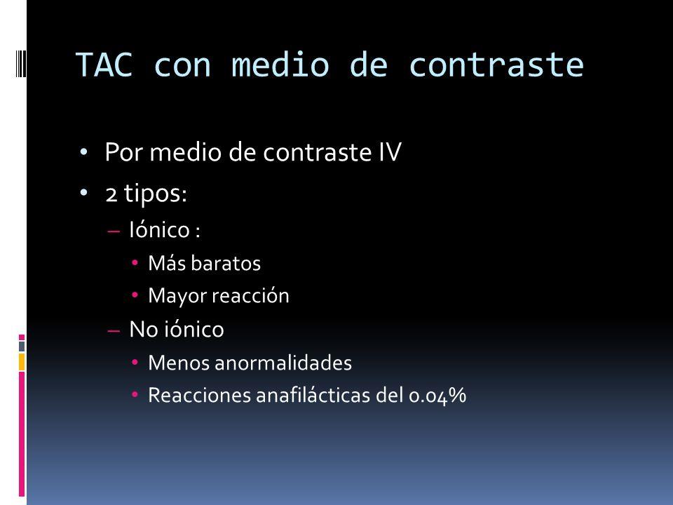 TAC con medio de contraste Por medio de contraste IV 2 tipos: – Iónico : Más baratos Mayor reacción – No iónico Menos anormalidades Reacciones anafilá