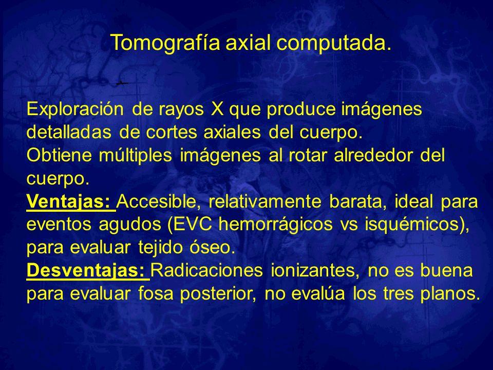 Tomografía axial computada. Exploración de rayos X que produce imágenes detalladas de cortes axiales del cuerpo. Obtiene múltiples imágenes al rotar a