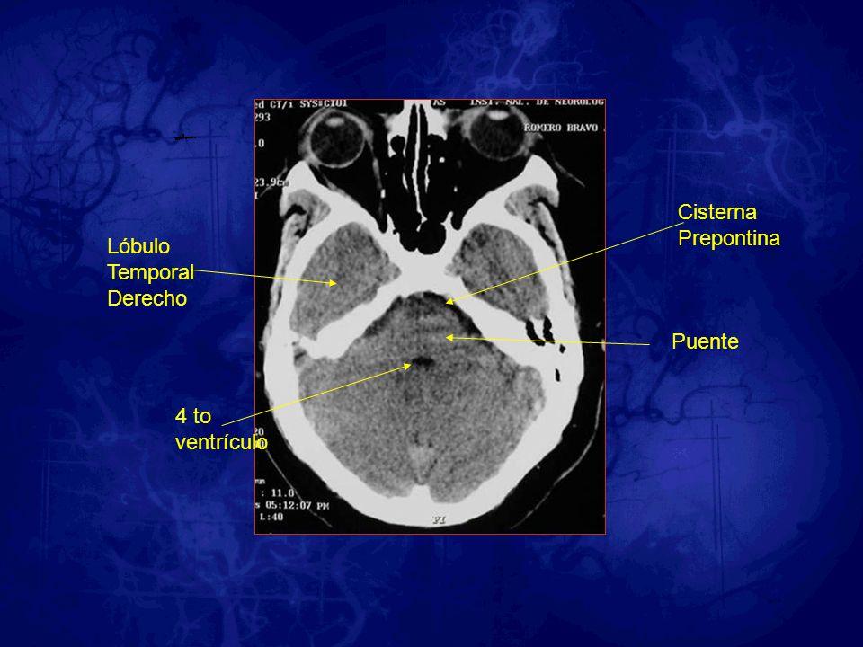 4 to ventrículo Cisterna Prepontina Puente Lóbulo Temporal Derecho