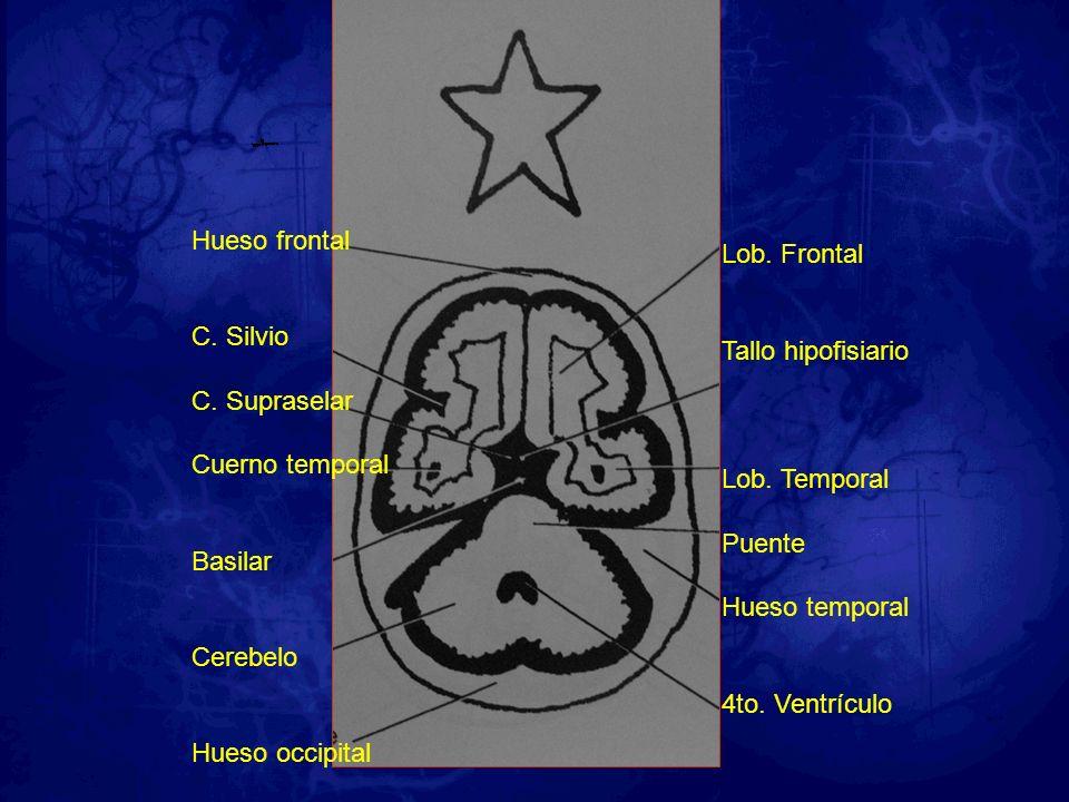 Hueso frontal C. Silvio C. Supraselar Cuerno temporal Basilar Cerebelo Hueso occipital Lob. Frontal Tallo hipofisiario Lob. Temporal Puente Hueso temp
