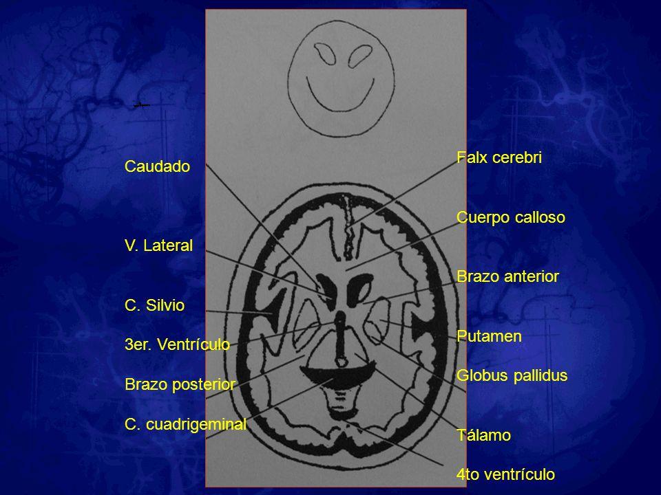 Caudado V. Lateral C. Silvio 3er. Ventrículo Brazo posterior C. cuadrigeminal Falx cerebri Cuerpo calloso Brazo anterior Putamen Globus pallidus Tálam