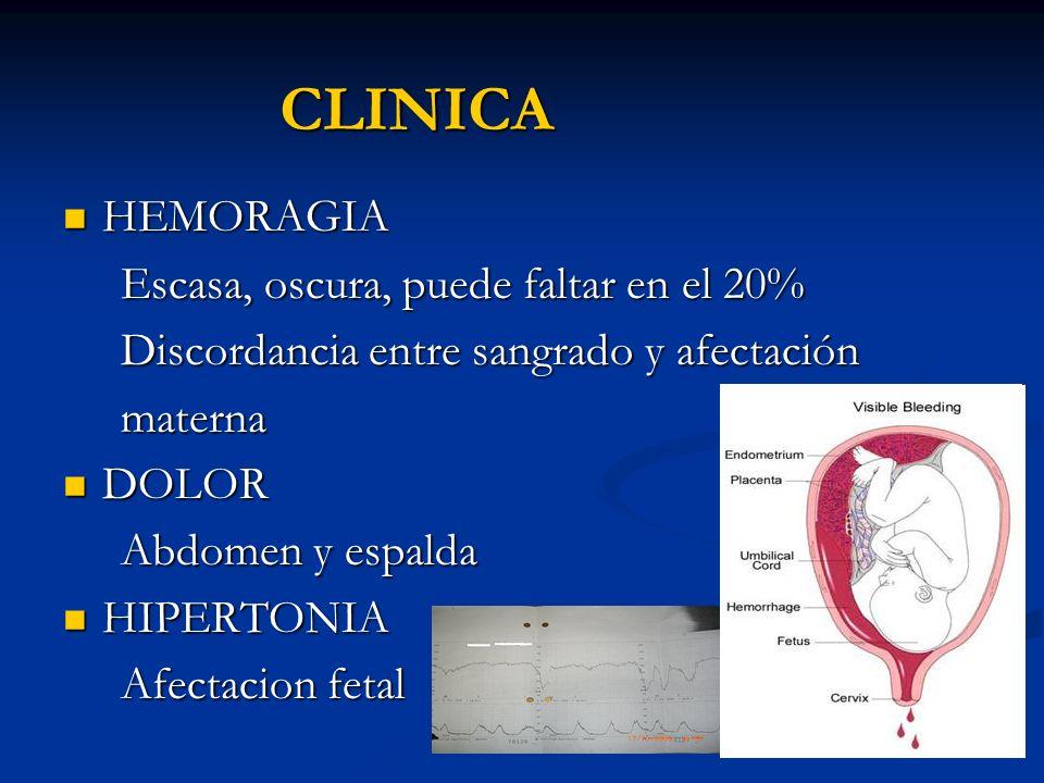 CLINICA HEMORAGIA HEMORAGIA Escasa, oscura, puede faltar en el 20% Escasa, oscura, puede faltar en el 20% Discordancia entre sangrado y afectación Dis