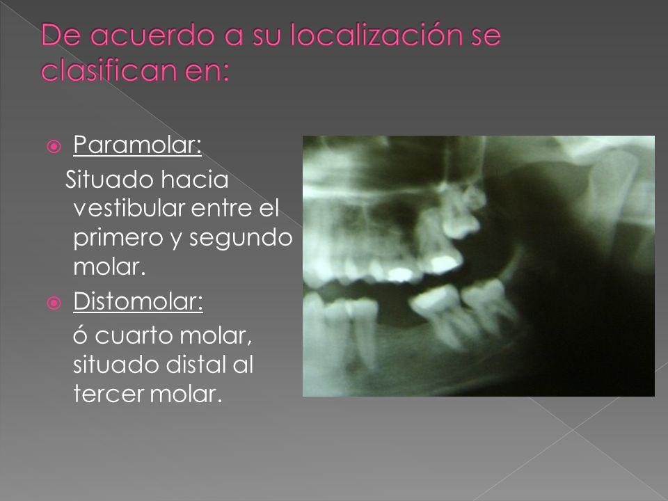 Paramolar: Situado hacia vestibular entre el primero y segundo molar. Distomolar: ó cuarto molar, situado distal al tercer molar.