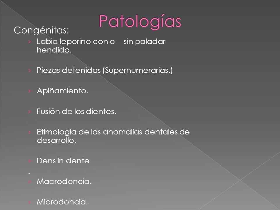 Congénitas: Labio leporino con o sin paladar hendido. Piezas detenidas (Supernumerarias.) Apiñamiento. Fusión de los dientes. Etimología de las anomal