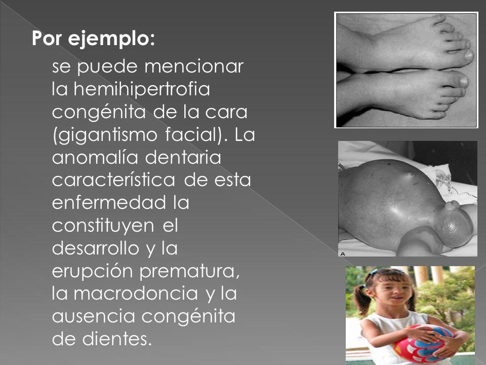 Por ejemplo: se puede mencionar la hemihipertrofia congénita de la cara (gigantismo facial). La anomalía dentaria característica de esta enfermedad la