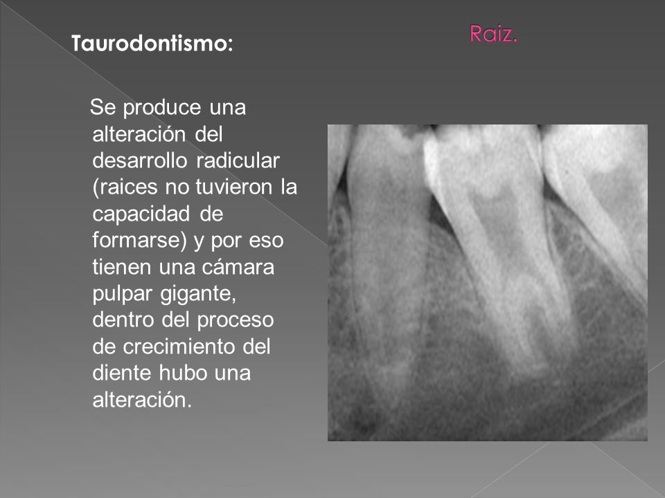 Taurodontismo: Se produce una alteración del desarrollo radicular (raices no tuvieron la capacidad de formarse) y por eso tienen una cámara pulpar gig