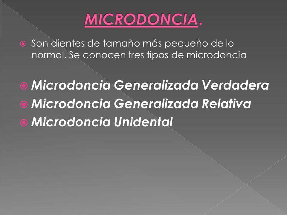 Son dientes de tamaño más pequeño de lo normal. Se conocen tres tipos de microdoncia Microdoncia Generalizada Verdadera Microdoncia Generalizada Relat