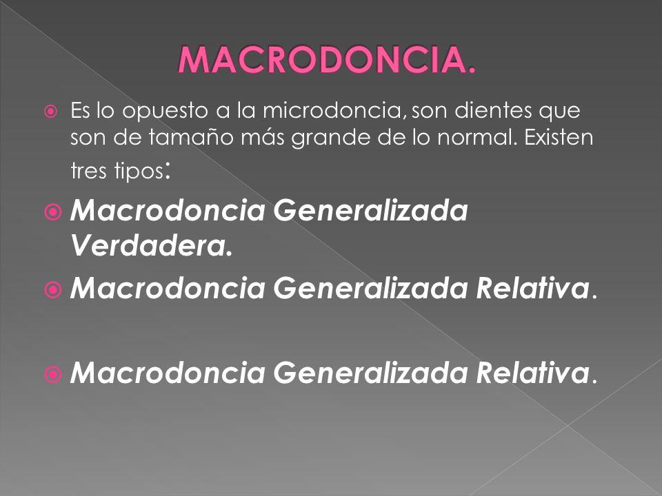 Es lo opuesto a la microdoncia, son dientes que son de tamaño más grande de lo normal. Existen tres tipos : Macrodoncia Generalizada Verdadera. Macrod