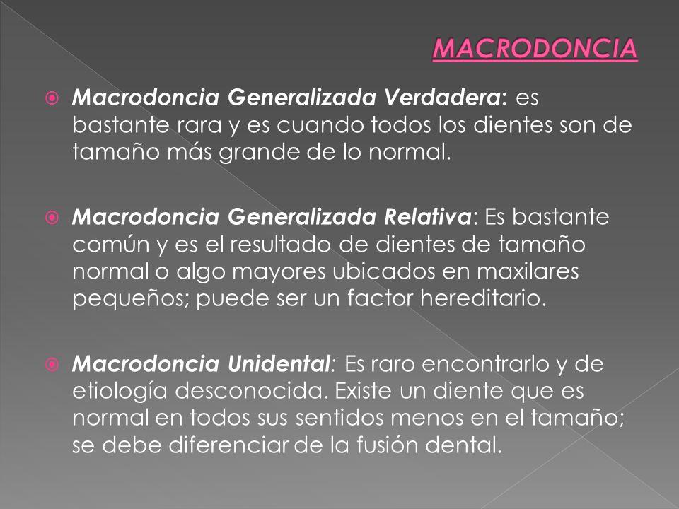 Macrodoncia Generalizada Verdadera : es bastante rara y es cuando todos los dientes son de tamaño más grande de lo normal. Macrodoncia Generalizada Re