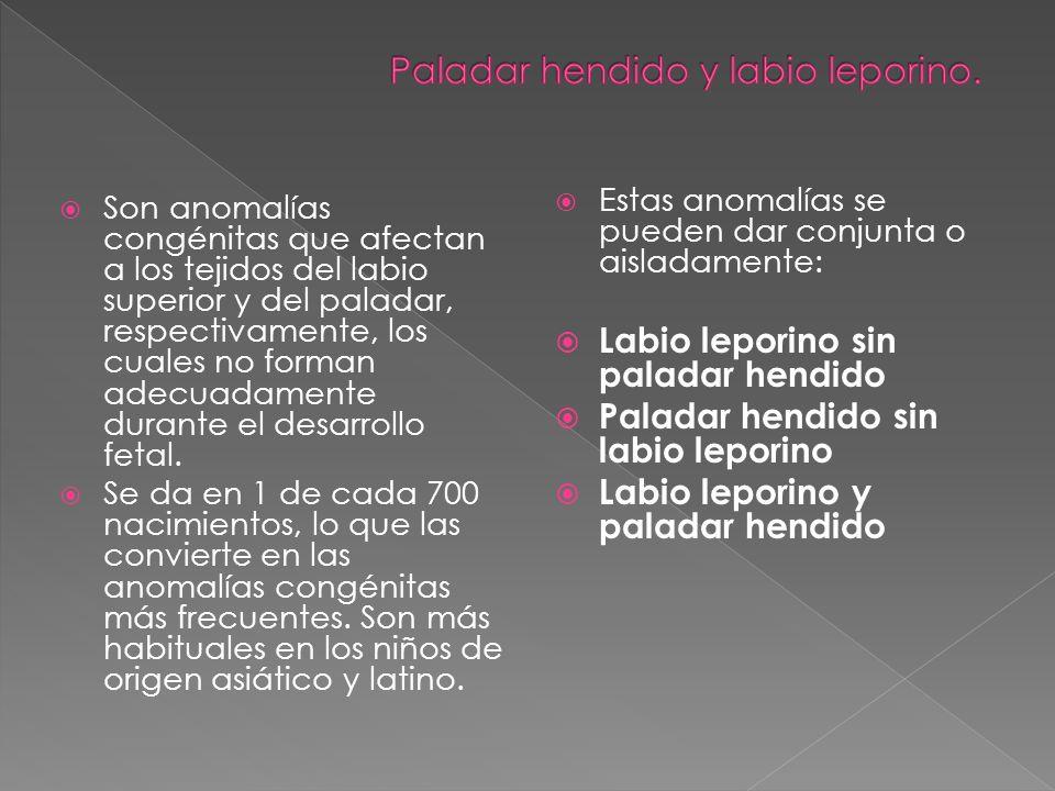 Son anomalías congénitas que afectan a los tejidos del labio superior y del paladar, respectivamente, los cuales no forman adecuadamente durante el de