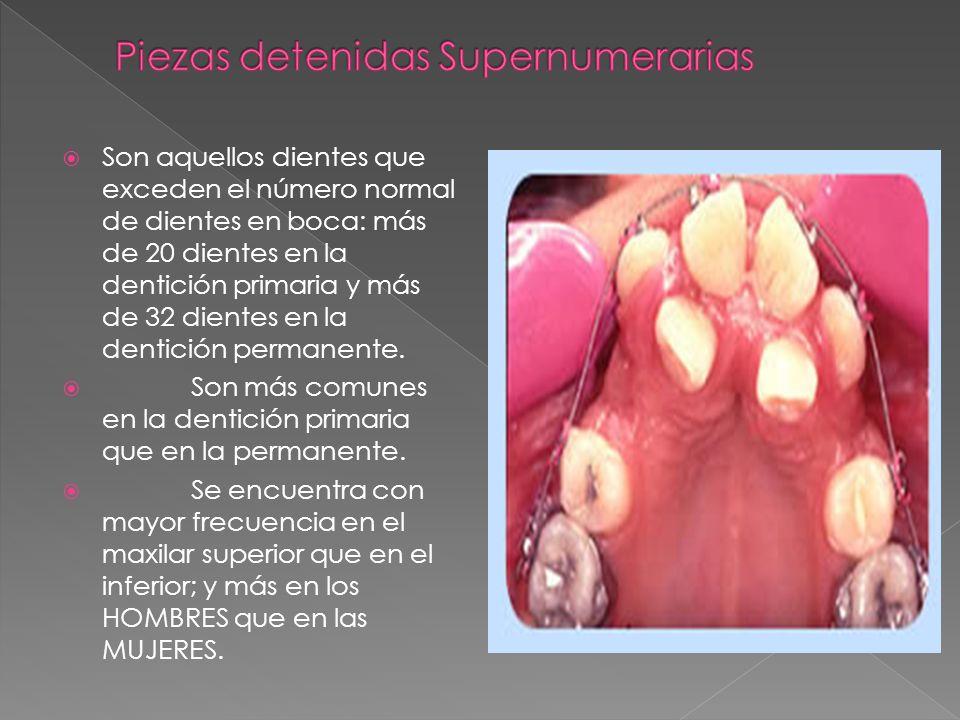 Son aquellos dientes que exceden el número normal de dientes en boca: más de 20 dientes en la dentición primaria y más de 32 dientes en la dentición p